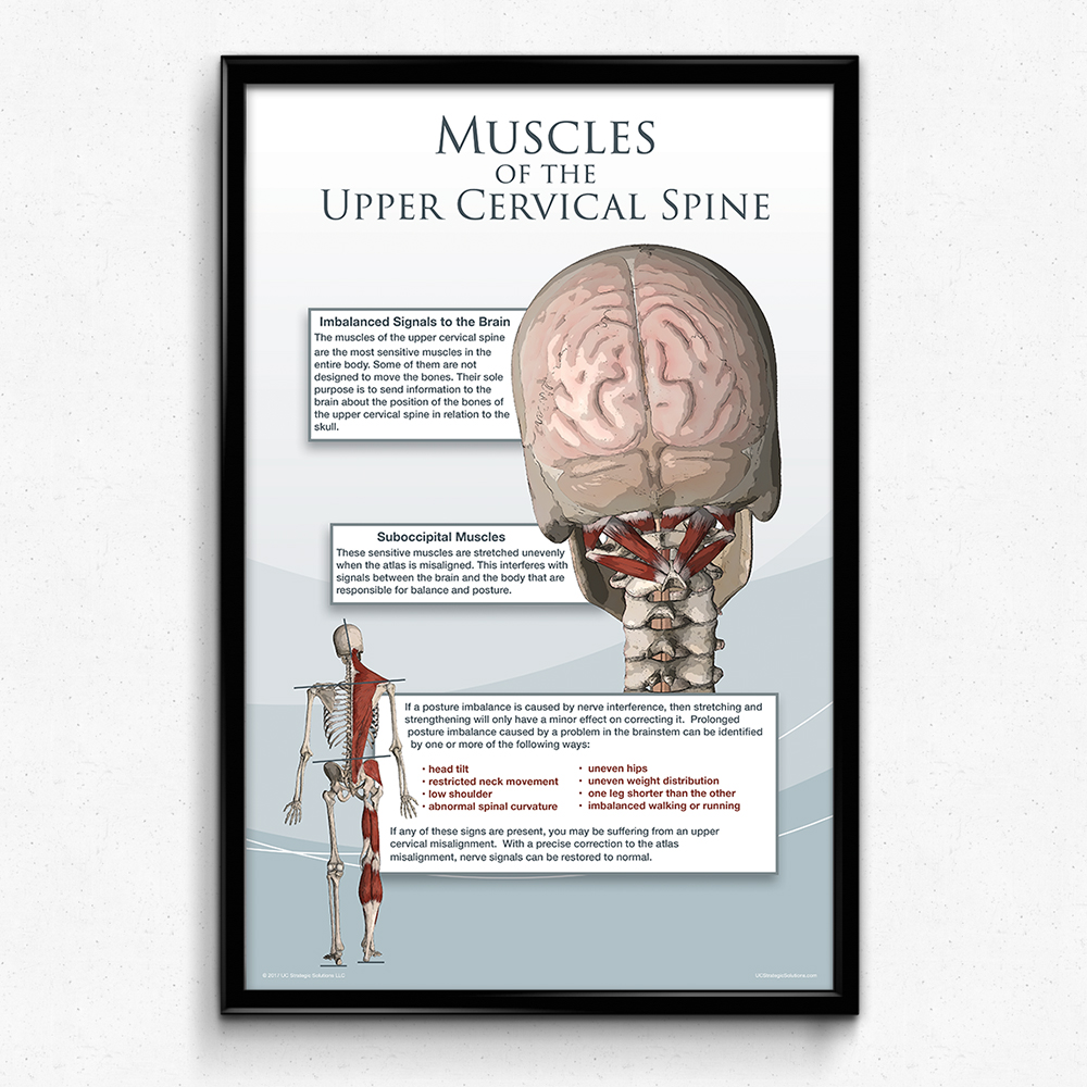 Muscles of the Upper Cervical Spine – Strategic Solutions